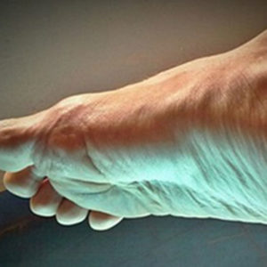 Foot-laser-therapy